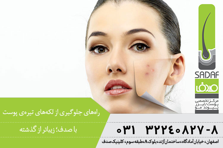 راههای جلوگیری از لکههای تیره پوست