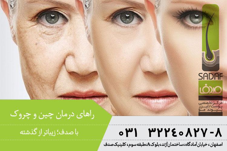 بهترین درمان چین و چروک در اصفهان