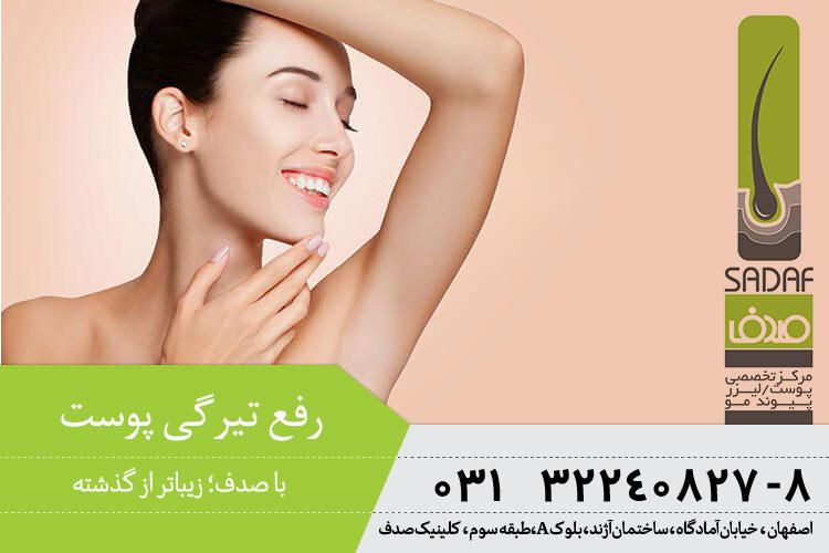 رفع تیرگی پوست در اصفهان