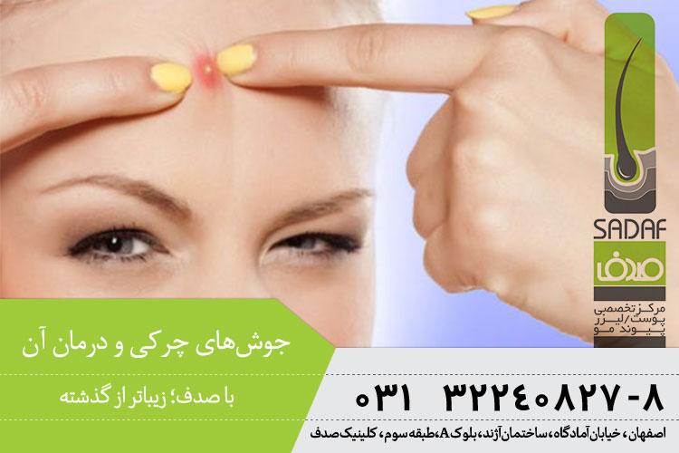 درمان جوشهای چرکی در اصفهان