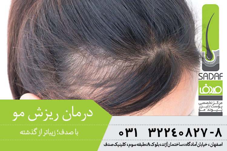 درمان ریزش مو در اصفهان