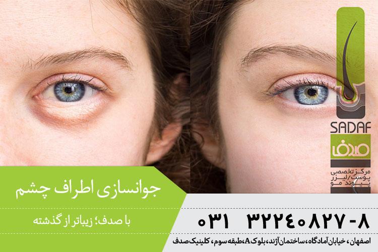 جوانسازی اطراف چشم در اصفهان