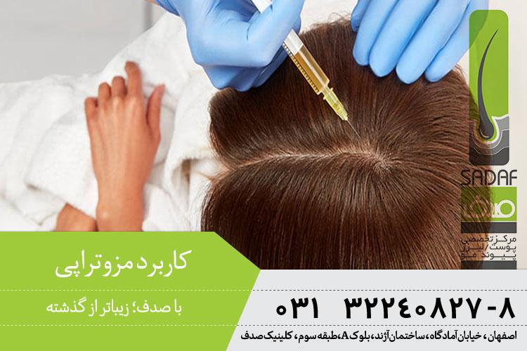 کاربرد و درمان مزوتراپی در اصفهان