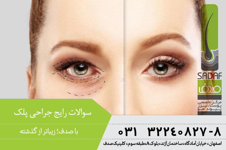 سوالات رایج جراحی پلک در اصفهان