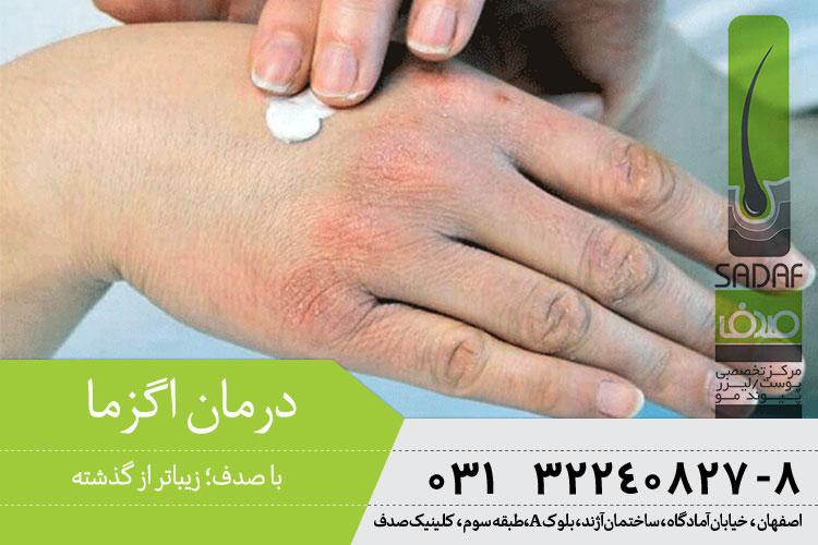 بهترین درمان اگزما در اصفهان