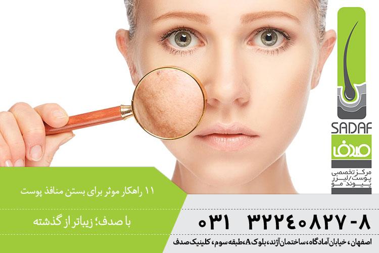 بهترین راهکار های مستن منافذ پوست در اصفهان