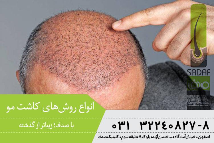 انواع روش های کاشت موی در اصفهان