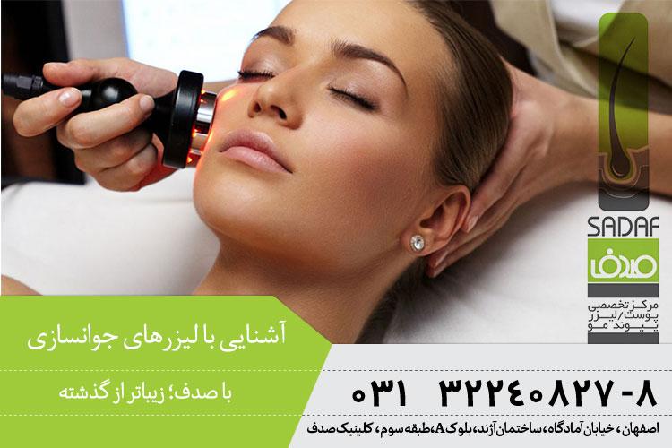 بهترین لیزرهای جوانسازی پوست در اصفهان