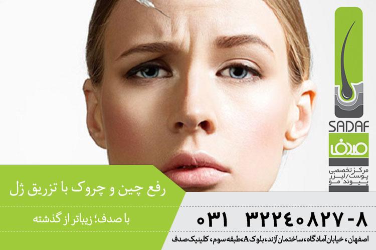 بهترین درمان چین و چروک با تزریق ژل در اصفهان