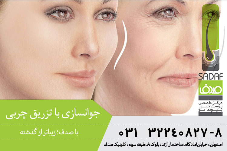 بهترین درمان چین و چروک با تزریق چربی در اصفهان