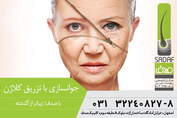 بهترین روش جوانسازی پوست با تزریق کلاژن در اصفهان