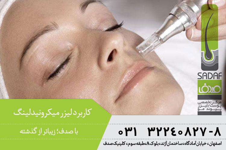 کاربرد میکرونیدلینگ در اصفهان