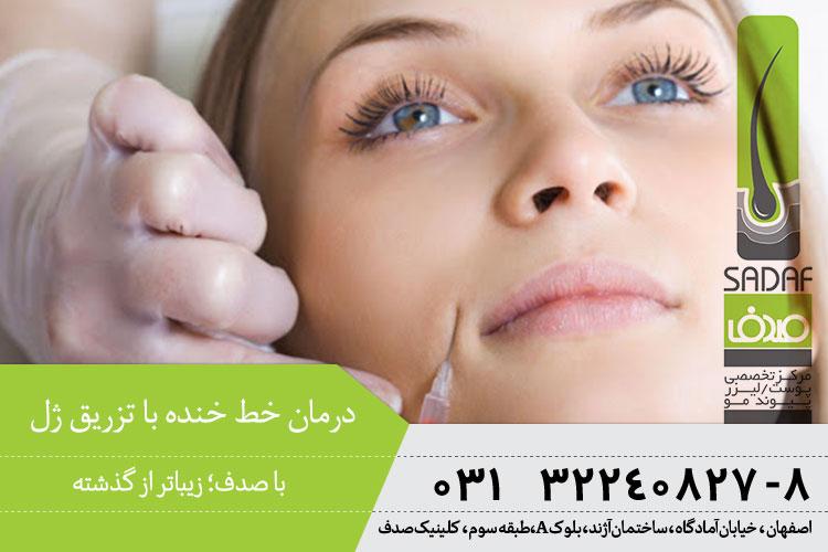 بهترین درمان خط خنده با تزریق ژل در اصفهان