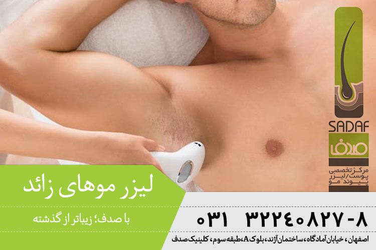 بهترین لیزر موهای زائد در اصفهان