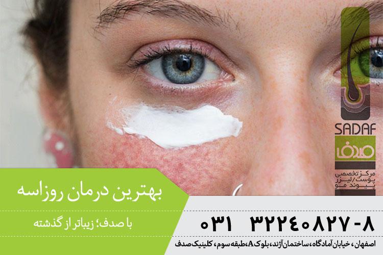 بهترین درمان روزاسه در اصفهان