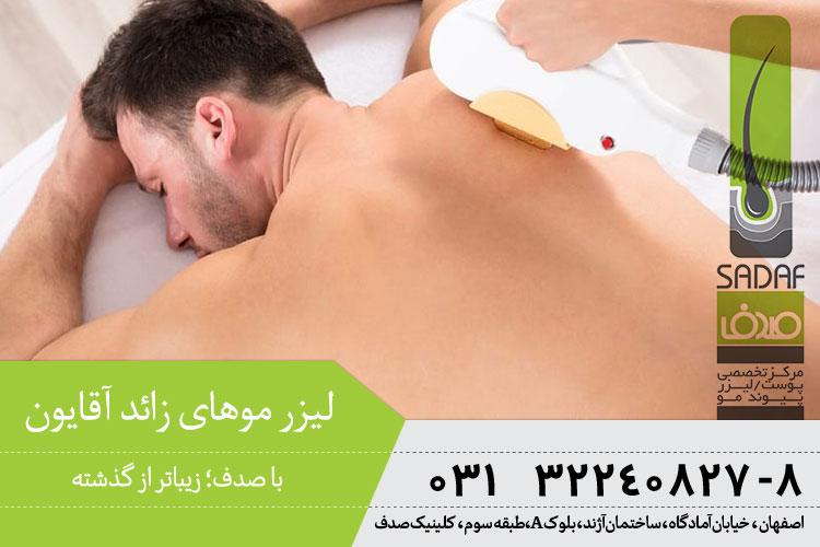بهترین لیزر موهای زائد در کلینیک صدف اصفهان