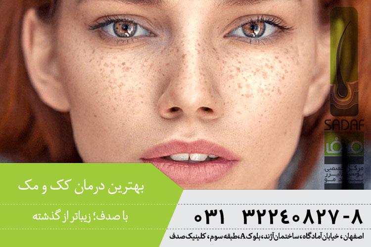بهترین درمان کک و مک در کلینیک صدف اصفهان