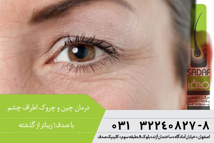 بهترین درمان چین و چروک اطراف چشم در اصفهان