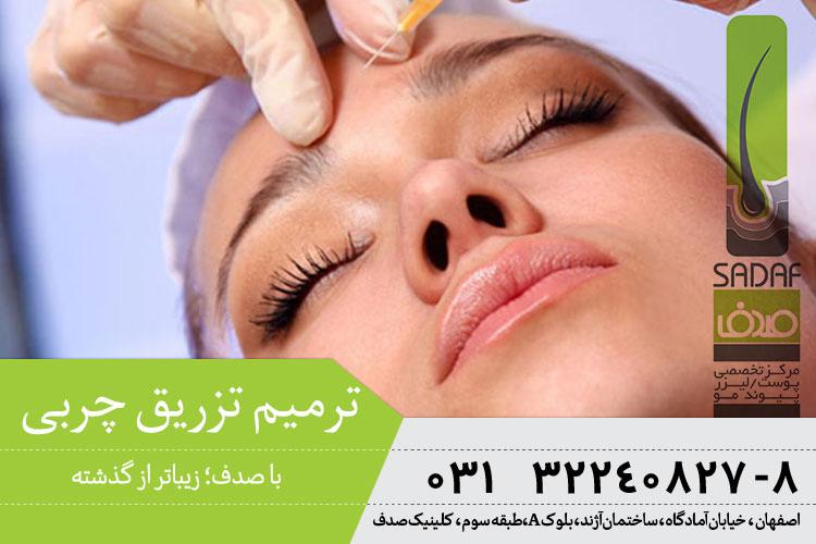 بهترین ترمیم تزریق چربی در اصفهان
