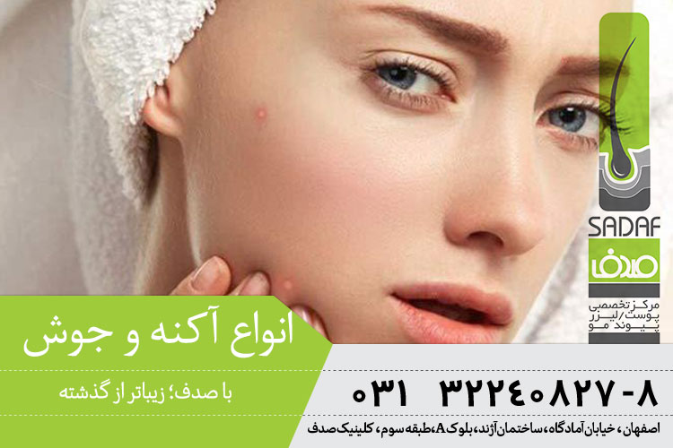 بهترین درمان آکنه و جوش در کلینیک صدف اصفهان