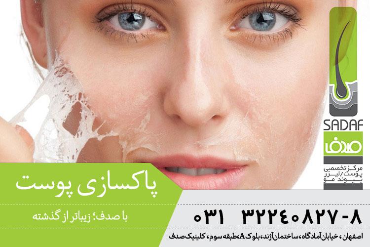 بهترین پاکسازی پوست در کلینیک صدف اصفهان