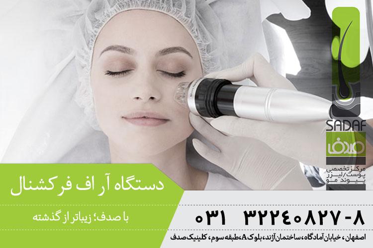 بهترین لیزر آر اف فرکشنال در کلینیک پوست و موی صدف اصفهان