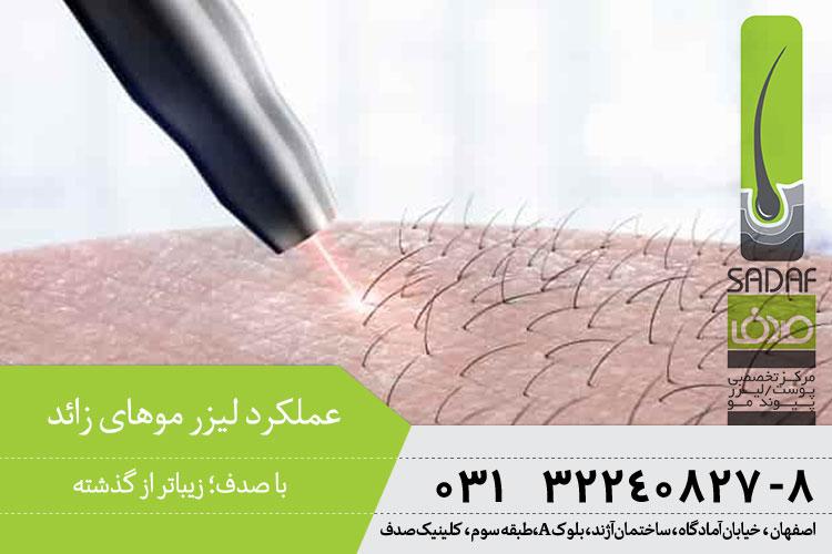 عملکرد لیزر موهای زائد در کلینیک صدف اصفهان