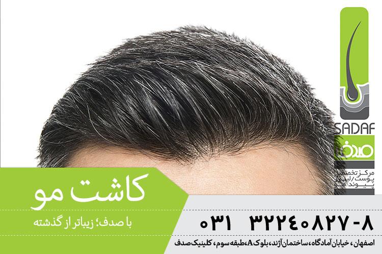 بهترین پیوند مو در اصفهان