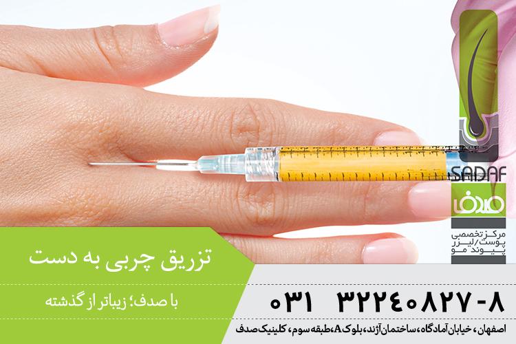 بهترین تزریق چربی در اصفهان