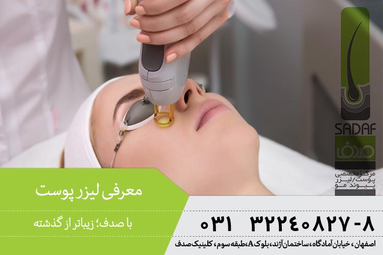 بهترین لیزر پوست در اصفهان