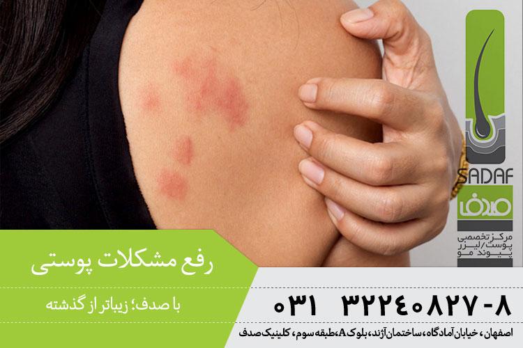 رفع مشکلات پوستی در اصفهان ، بهترین متخصص پوست در اصفهان
