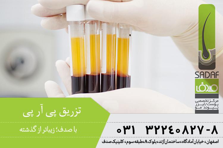 کاربرد پی آر پی در اصفهان