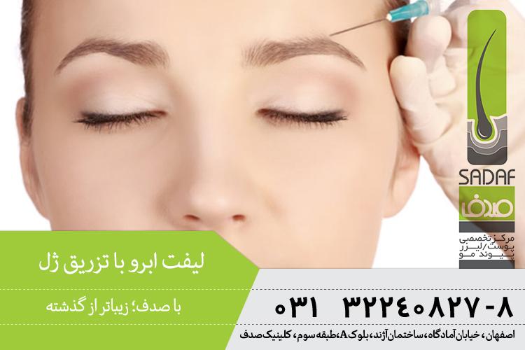 بهترین تزریق ژل ابرو در اصفهان