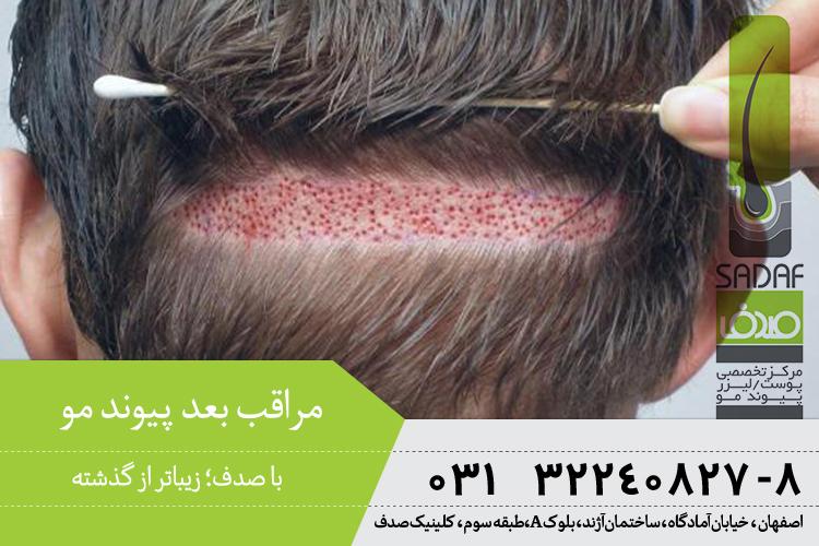 بهترین پیوند مو در اصفهان ، مراقبت بعد از کاشت مو