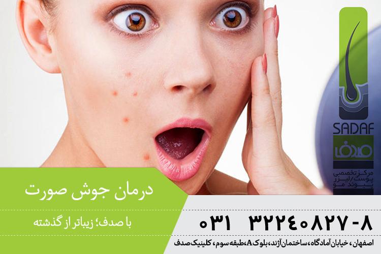 بهترین درمان جوش در اصفهان