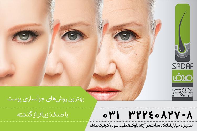 بهترین روش های جوانسازی پوست در اصفهان ، کلینیک پوست و مو صدف