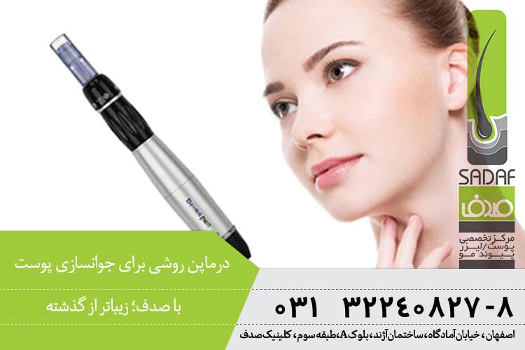 درماپن روشی برای جوانسازی پوست ، کلینیک پوست و مو صدف