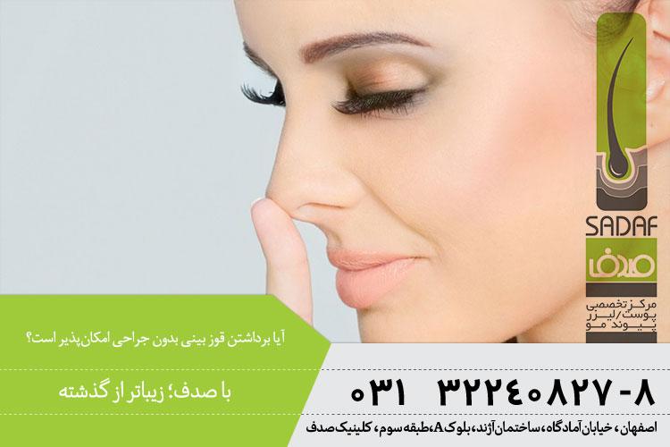 بهترین روش برداشتن فوز بینی بدون جراحی در اصفهان