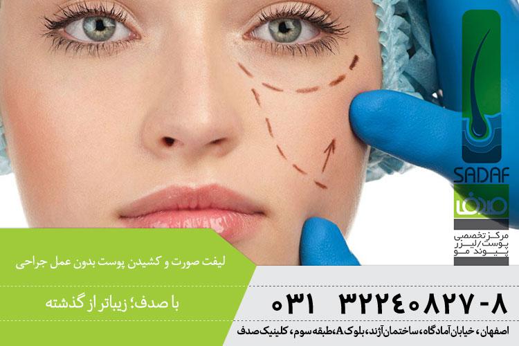 بهترین لیفت صورت بدون جراحی در اصفهان