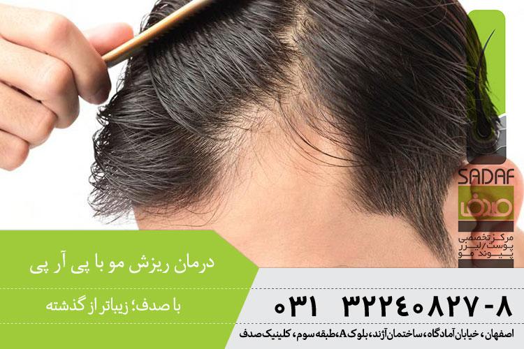 بهترین درمان ریزش مو با پی آر پی