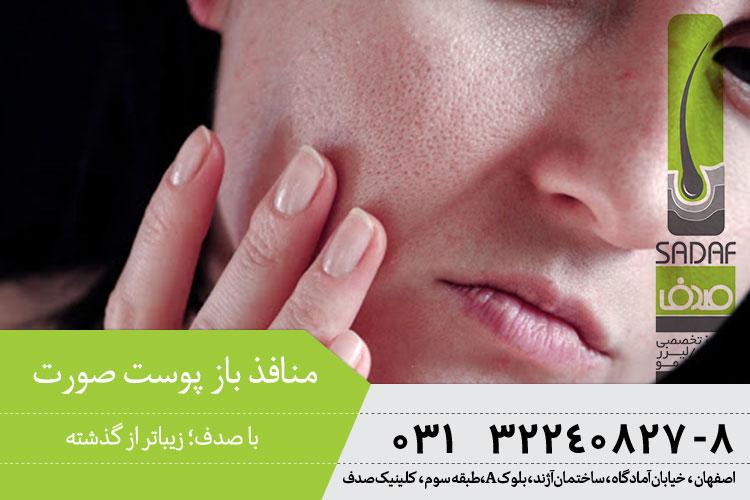 راههای بستن منافذ پوست ، کلینیک صدف