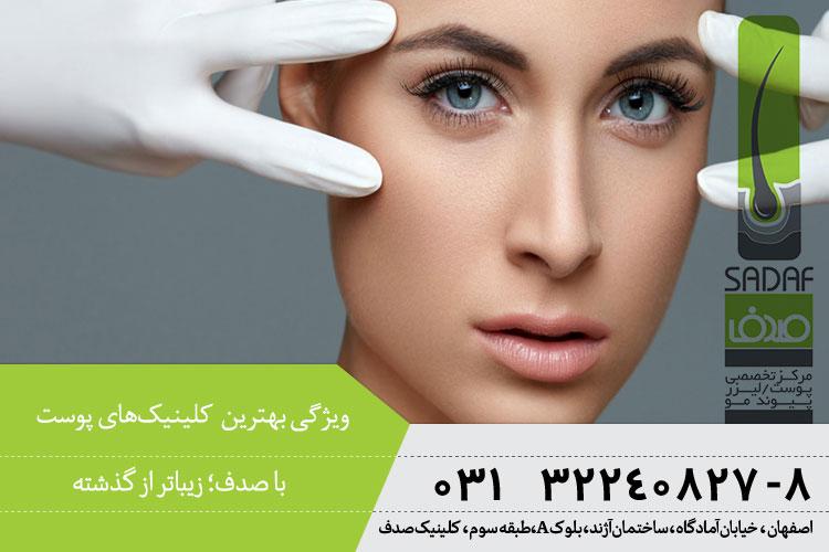 ویژگی بهترین کلینیک پوست و مو در اصفهان