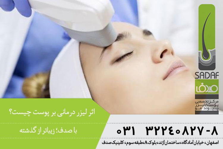 اثر لیزر درمانی بر مشکلات پوستی