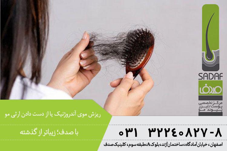 علل ریزش موی آندروژنیک