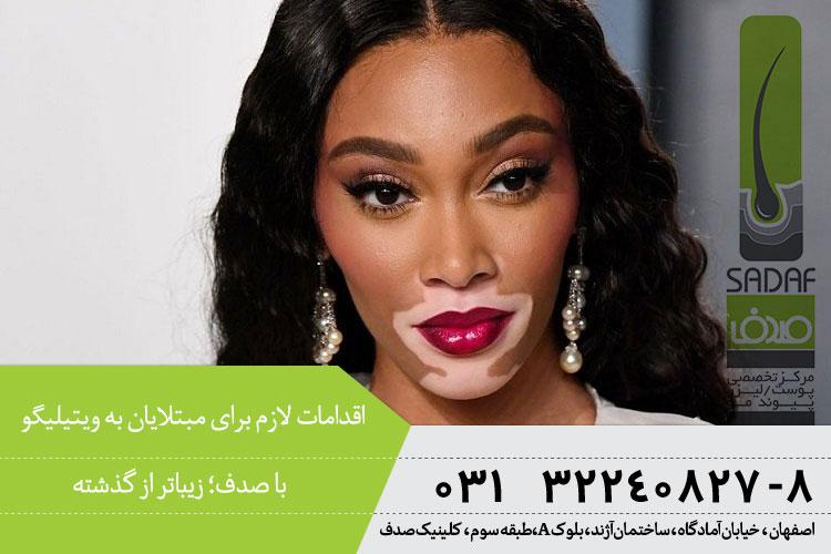 بایدها و نبایدهای ویتیلیگو | بهترین متخصص پوست در اصفهان