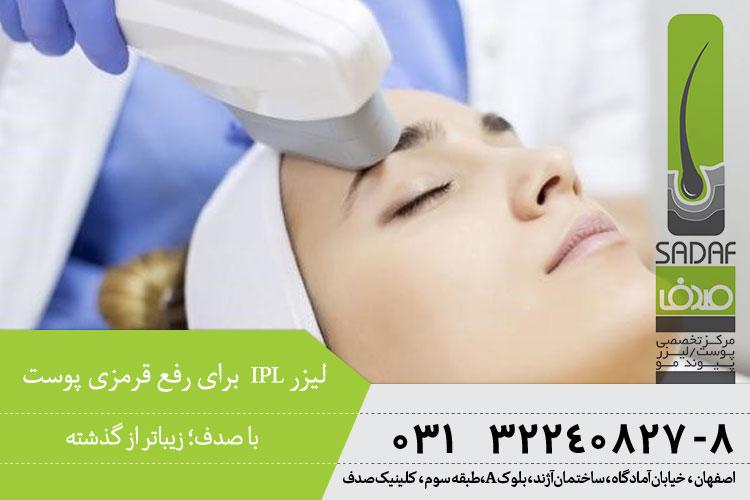 درمان قرمزی جای جوش با لیزر IPL  | کلینیک تخصصی پوست صدف در اصفهان