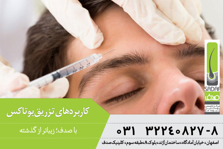 کاربرد تزریق بوتاکس