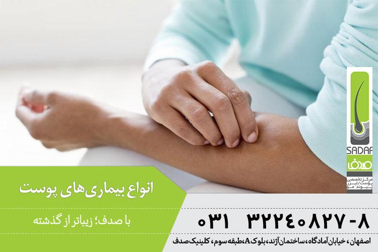 انواع بیماری های پوستی