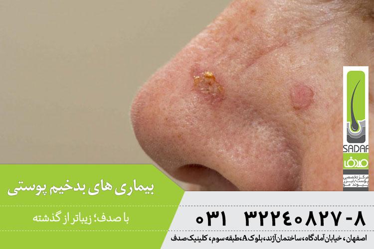 بیماری های بدخیم پوستی