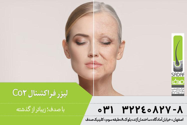 مزایای جوانسازی پوست با لیزر CO2 فرکشنال